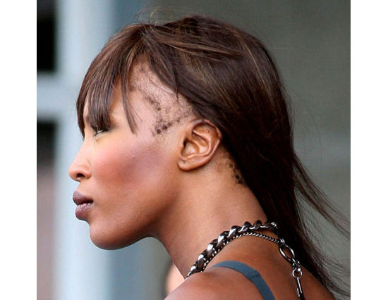 6 Ways to Prevent Your Hairline from Breaking Off